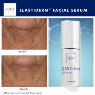 Obagi ELASTIderm® Facial Serum - Antes y después