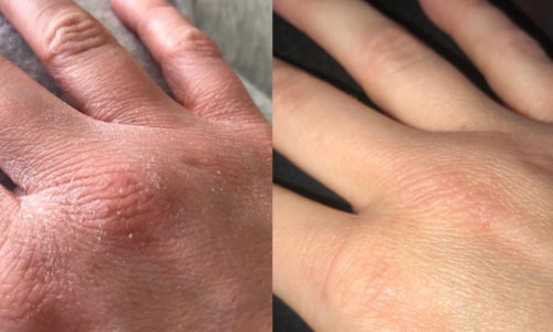 Before and After Obagi Hydrate